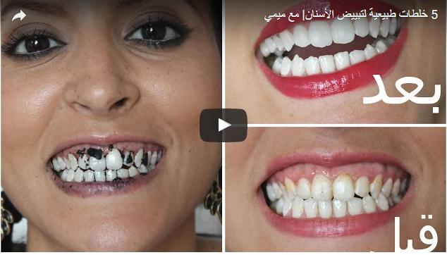 أفضل طرق ووصفات طبيعية لتبييض الاسنان لحن الحياة